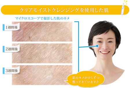 肌のキメの変化